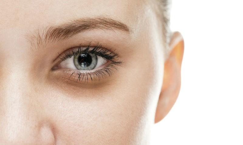 Laser para olheiras